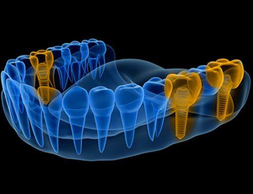 Smart dental implants